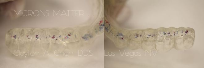 Microns Matter - GNM Occlusion - Clayton A. Chan, DDS